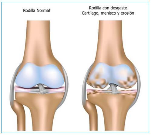 Desgaste de rodilla 2