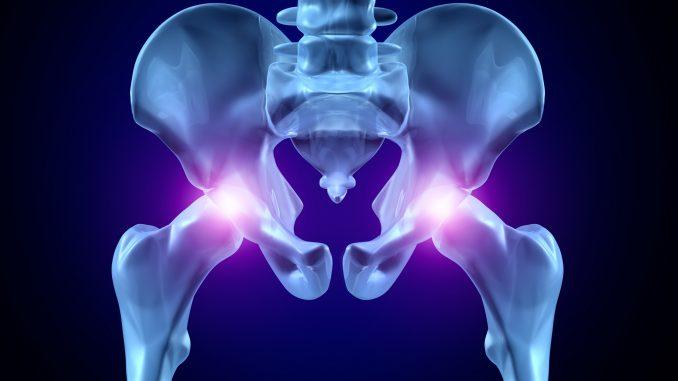 Desgaste de cadera 2