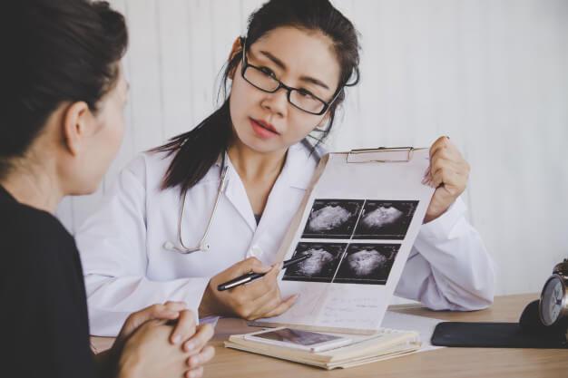 Miomatosis uterina 3