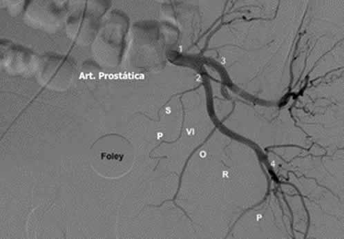 prostata-foto2